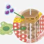 傷ついた細胞を白血球が貪食・撤去します。