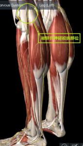 下垂足の一症例