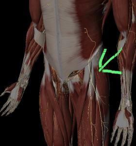 ぎっくり腰と大腿外側の痛み・こわばり