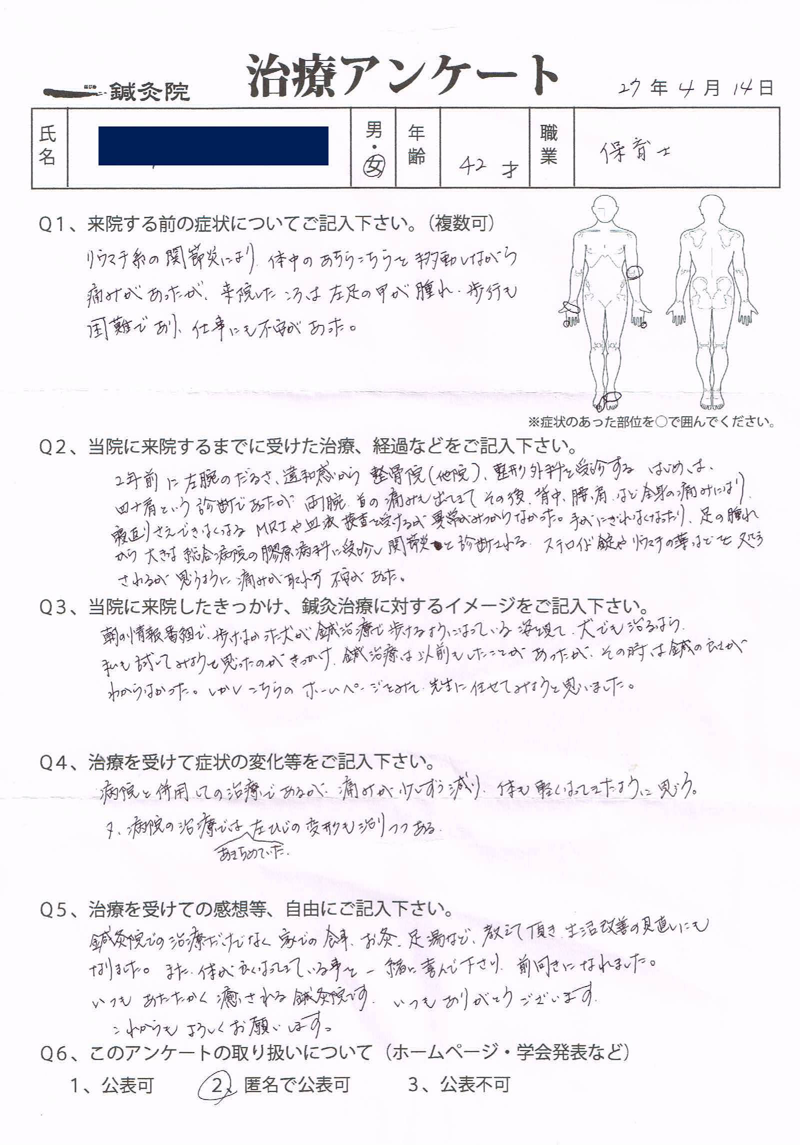 リウマチによる関節炎、関節拘縮
