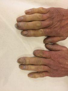 指先の冷えと痛み・レイノー現象