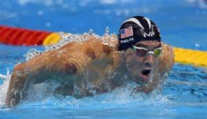 吸玉(カッピング)とオリンピック