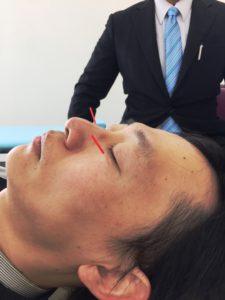 眼の疾患と毛様体神経節刺鍼