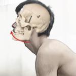 頭蓋骨が後方に傾き下顎が前方に突出した状態